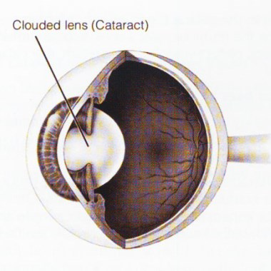 Question: What are Cataracts?
