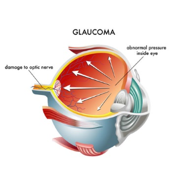 Question: What is Glaucoma?