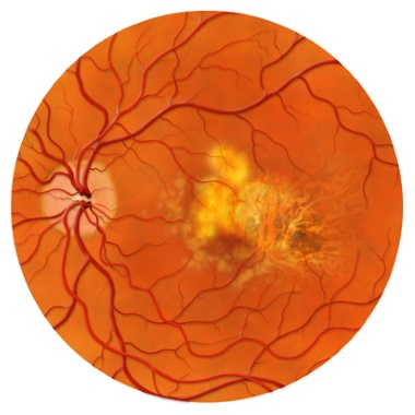 Question: What is Age-Related Macular Degeneration?